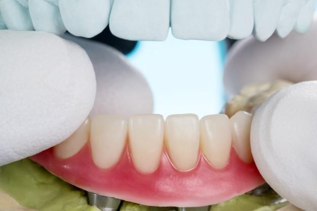 implanty-zblizeniowe-dentystyczne-wspomagane-przez-nadcisnienie_60829-598