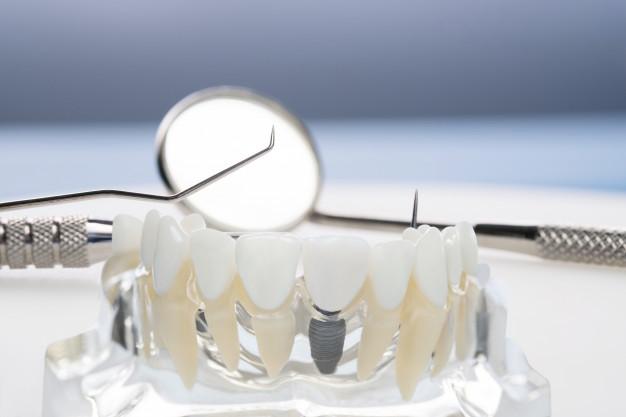 model-implantologiczny-i-ortodontyczny-oraz-narzedzia-do-uczenia-sie-modelu-nauczania-przedstawiajacego-zeby_60829-536