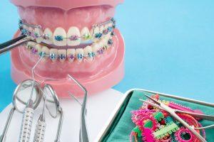 jaki aparat ortodontyczny dla dziecka