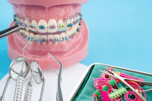 Pierwsza wizyta u ortodonty