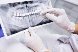 rętgen zęba na ursynowie