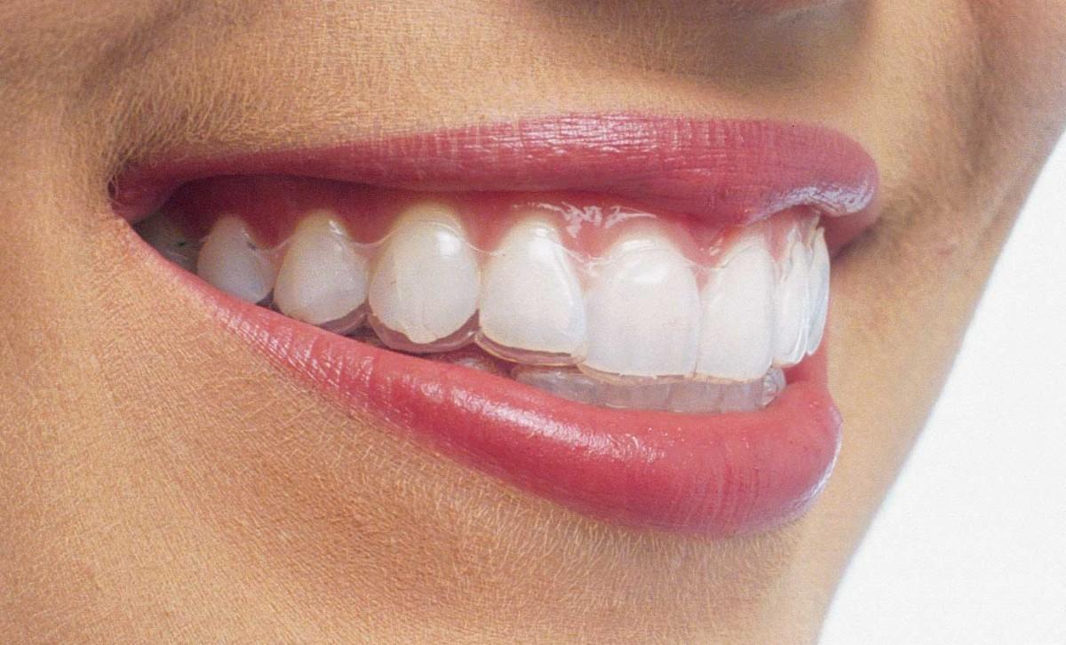 Invisalign, czyli ortodoncja w innej odsłonie.